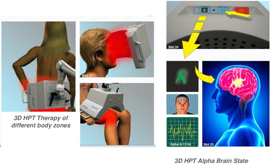3D Hyper-photon is an advanced laser and photon system examples of use